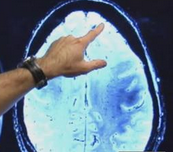 UCLA Study: Alzheimers responds to natural treatment